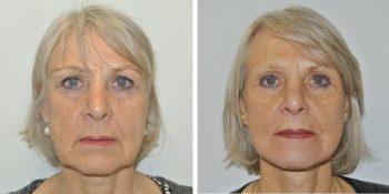 facelift voor en 3 maanden na de opertie uitgevoerd door dr van der weij 10