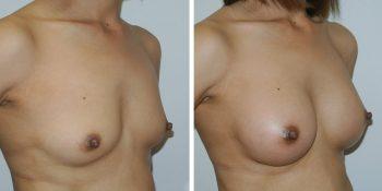 Beautiful borstvergroting voor en na foto Dr van der weij 230 cc anatomische prothese