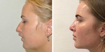 beautiful dr van der weij neuscorrectie voor en na 30 linkerzijde