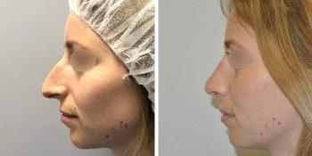 24 beautiful dr van der weij neuscorrectie voor en na linker kant
