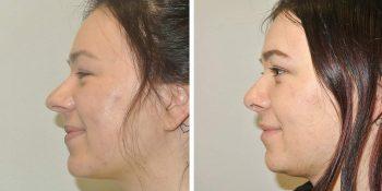25 beautiful dr van der weij neuscorrectie voor en na linker zijkant
