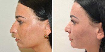 27 beautiful dr van der weij neuscorrectie voor en na linker zijkant