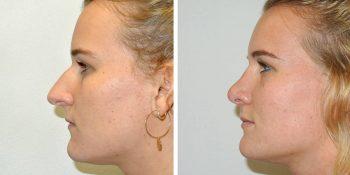 29 beautiful dr van der weij neuscorrectie voor en na rechter linker zijkant