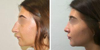 31 beautiful dr van der weij neuscorrectie voor en na linker zijkant