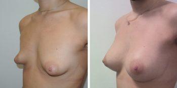 242 Beautiful borstvergroting voor en na foto Dr van der weij 270 cc anatomische prothese linkerzijde