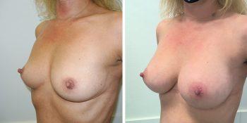 243 Beautiful borstvergroting voor en na foto Dr van der weij 245 cc anatomische prothese linkerzijde