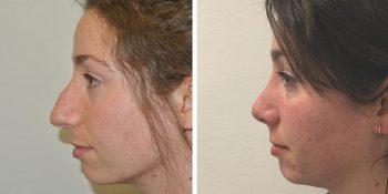 32 beautiful dr van der weij neuscorrectie voor en na linker zijkant
