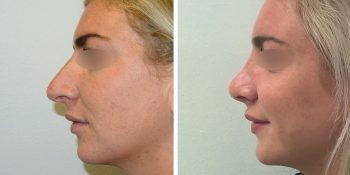 33 beautiful dr van der weij neuscorrectie voor en na linker zijkant