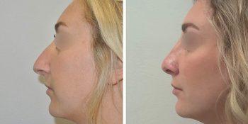 34 beautiful dr van der weij neuscorrectie voor en na linker zijkant