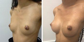 246 Beautiful borstvergroting voor en na foto Dr van der weij 230 cc anatomische prothese linkerkant