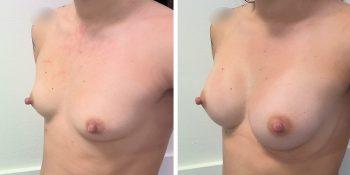 247 Beautiful borstvergroting voor en na foto Dr van der weij 230 cc anatomische prothese linkerkant