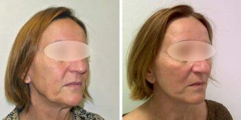 facelift voor en 3 maanden na de operatie uitgevoerd door dr van der weij 14 rechter zijkant