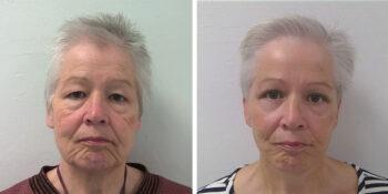 facelift voor en 3 maanden na de operatie uitgevoerd door dr van der weij 15voorkant