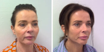 facelift voor en 3 maanden na de operatie uitgevoerd door dr van der weij 16 rechterkant